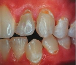 Preventative Dentistry Mooroolbark