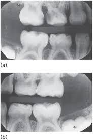 Tooth ache mooroolbark